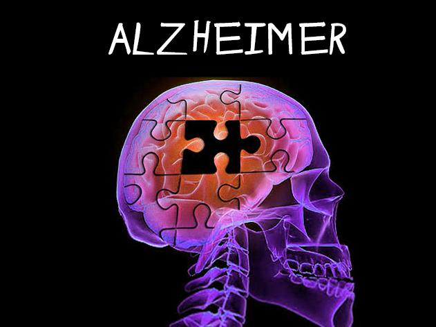alzheimers-